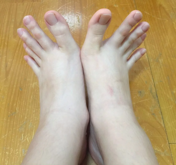 Everyone is obsessed with this woman's feet