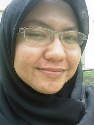 Pergi rawatan (chemical peeling) kulit di Klinik Suzana Bukit Indah JB