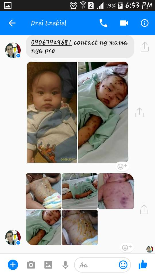 Netizen Seeks Help and Donations for a 7-Month-Old Baby Who Suffers From a Rare Skin Disease! THIS WILL BREAK YOUR HEART!