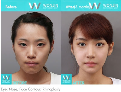 before and after korean celebrities face contouring-2