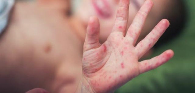 Perlindungan Imunisasi untuk bayi indonesia sehat
