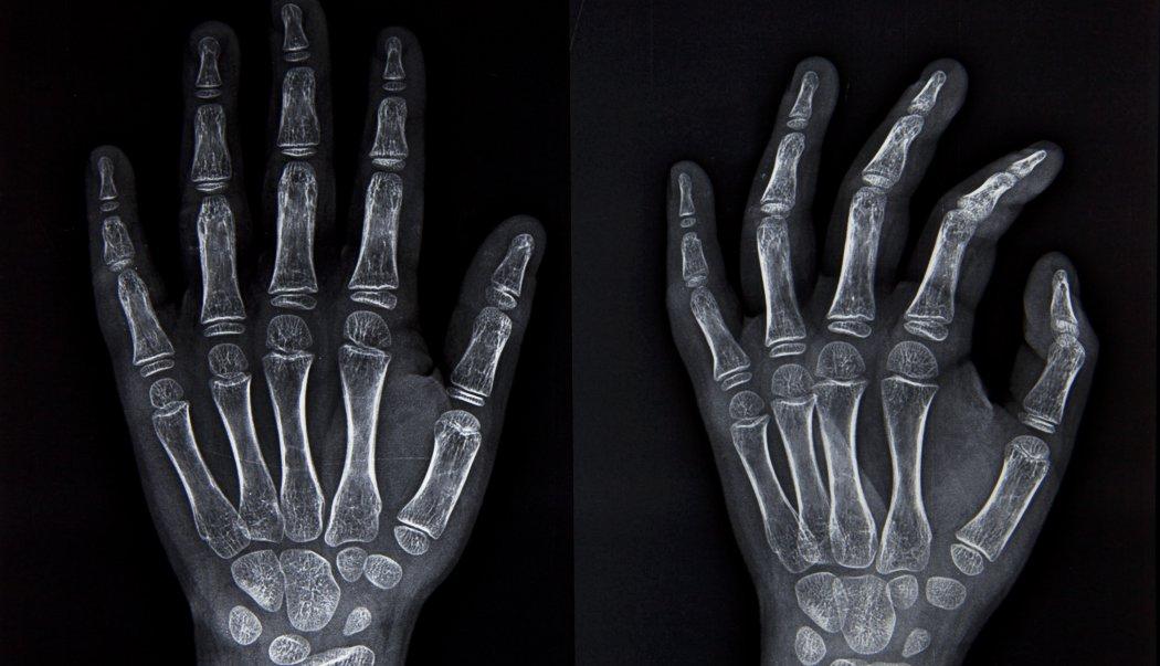 Huesos de las extremidades superiores e inferiores - Biología