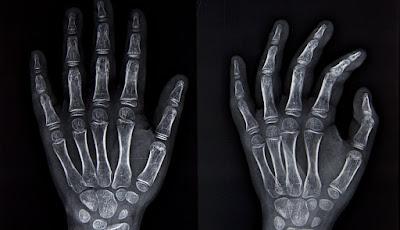 Huesos de la mano y biologia