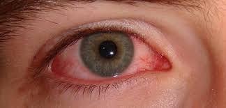 cara mengatasi mata perih karena debu