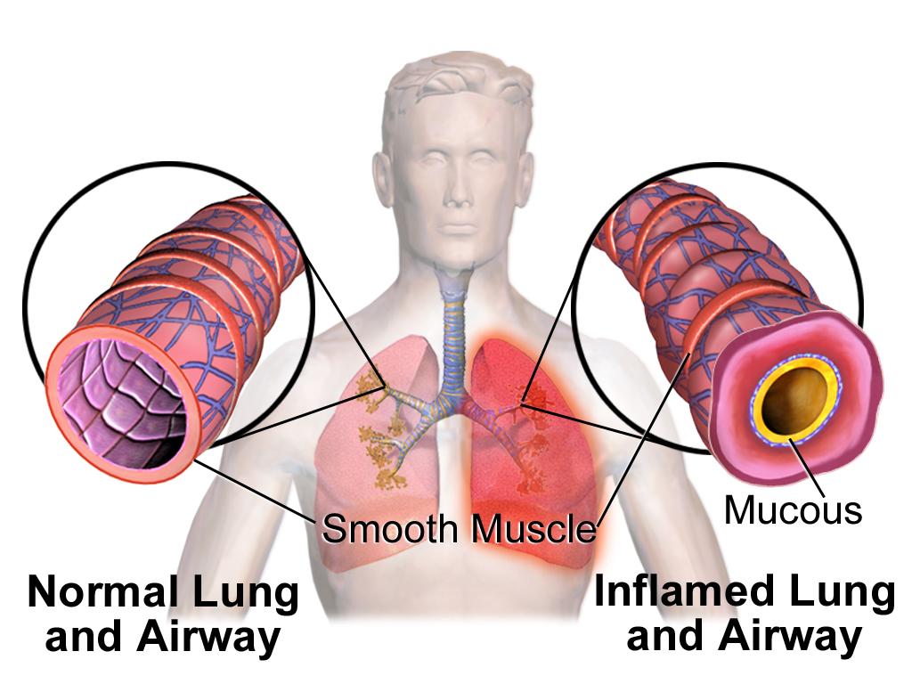 bronchite chronique asthmatiforme