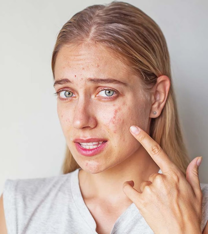 Acne Treatment - How To Squeeze, Pop A Spot, Zit Or Pimple
