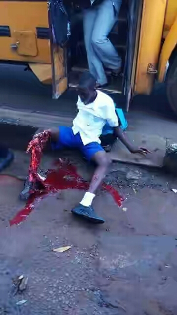Student's Leg Crushed In Lagos On His Way To School (Graphic Photos)
