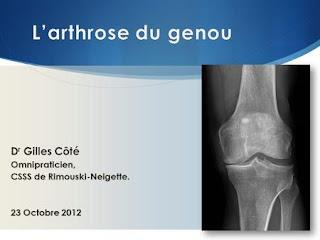 L'arthrose du genou .pdf