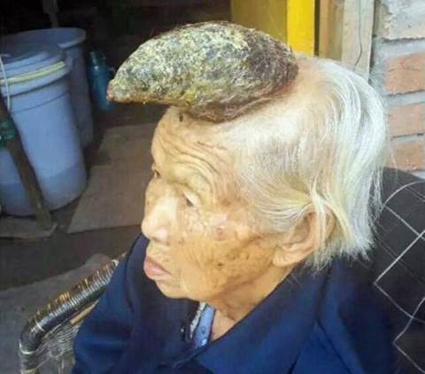 Woman Grows Horn On Head; Dubbed As The Human Unicorn