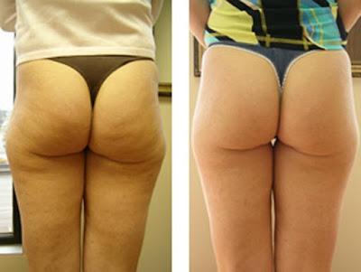 Éliminer la flaccidité des fesses en 7 jours