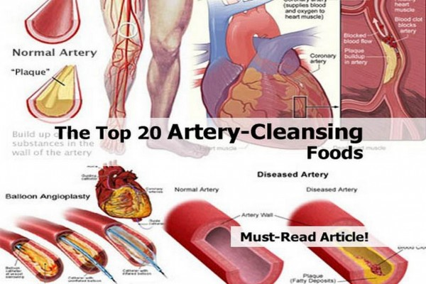 20 Foods That Keep Your Arteries Clogfree
