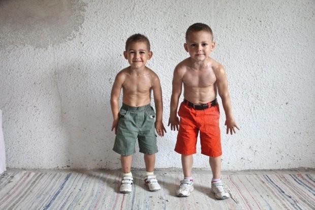 guiliano dan claudio stroe - anak balita terkuat di dunia