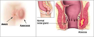 Obat Fistula Ani Tanpa Operasi