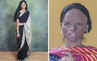 laxmi agarwal  before and after