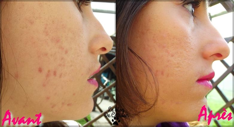 avant et après avec le correcteur BYS cosmetic