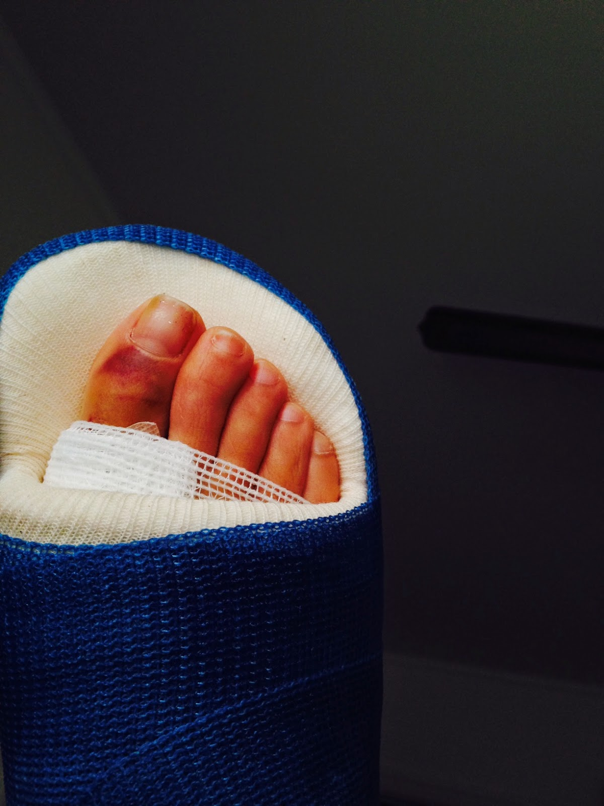 The Bloomin' Bunion: Bunion Surgery & Recovery Blog: April ...