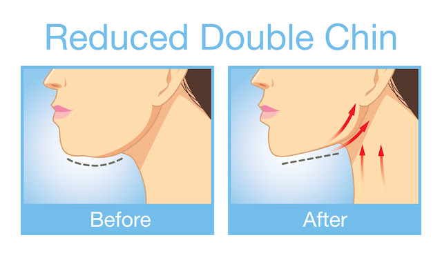 how to reduce double chin before and after