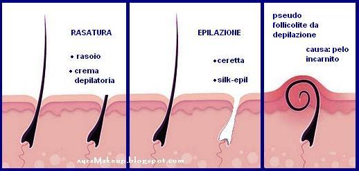 Capelli dopo lepilazione nella pelle