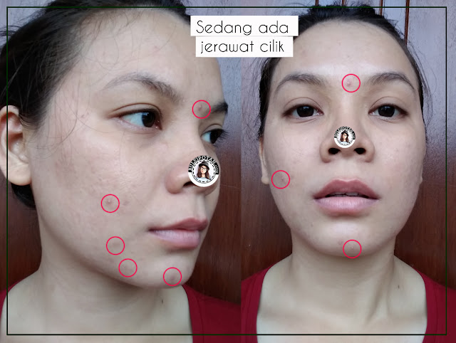 testimoni+Poppy+Dharsono+Facial+Cleansing+Bar