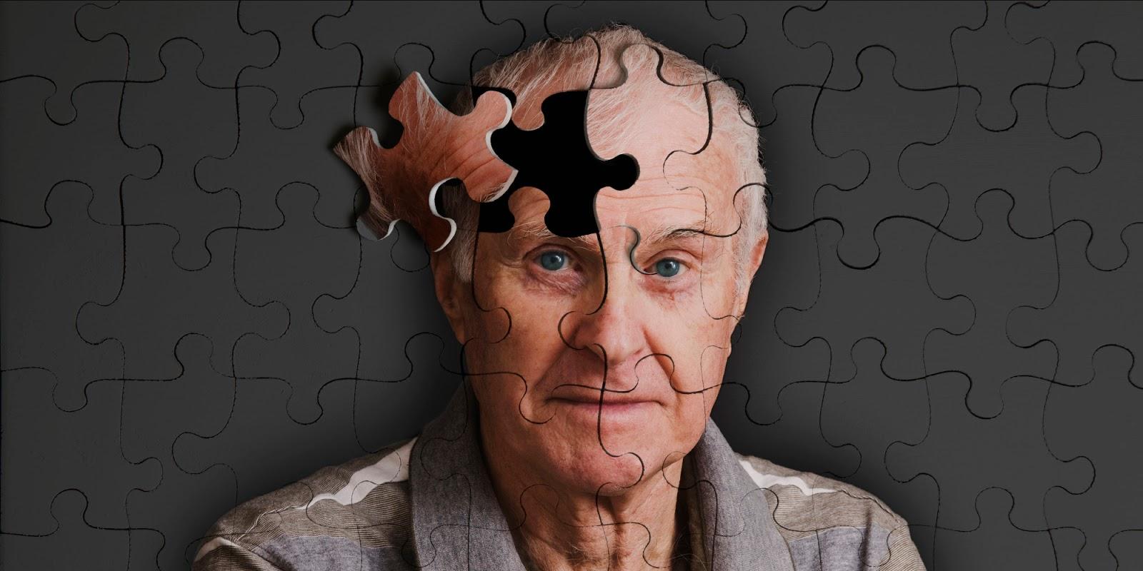 Las realidades del Alzheimer