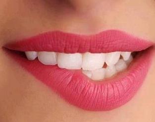Cara merawat gigi putih dan bersih