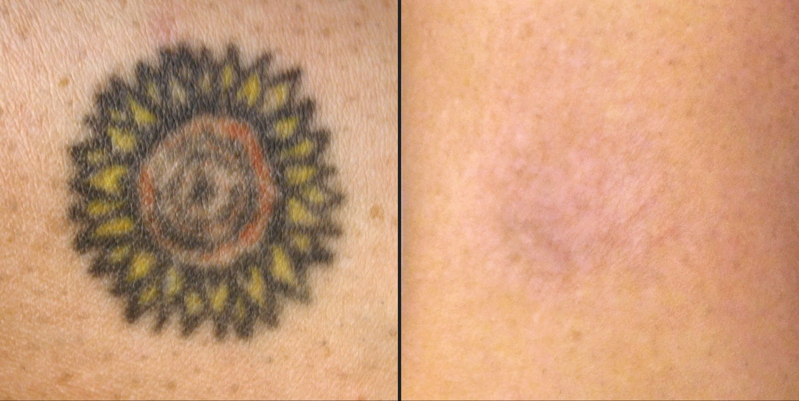 Remove Tattoo Naturally Home Natural Tattoo Removal Reviews