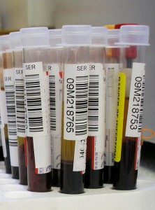 Blood Tests for MS
