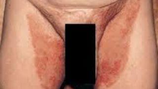 Obat Gatal Di Selangkangan Dan Kemaluan Pria
