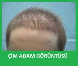 saç ektirmek mantıklı mı