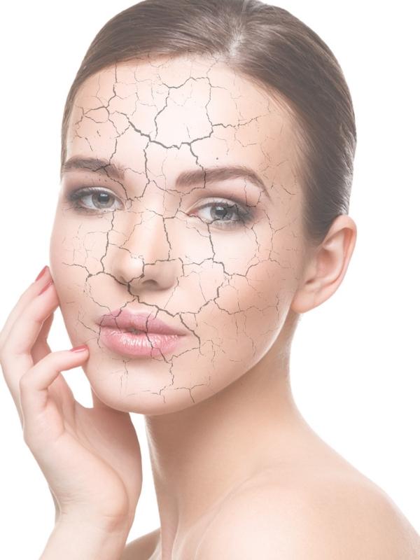 Αφυδατωμένο δέρμα: Όλα όσα πρέπει να ξέρεις για να το θεραπεύσεις αλλά και να το προλάβεις | Ioanna's Notebook