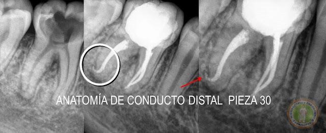 Tratamientos de Conductos Radiculares Convencionales con Microscopio ...