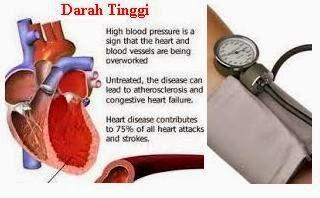 Pengobatan Herbal untuk Penderita Hipertensi