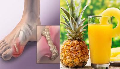 Benefits Of Pineapple Juice