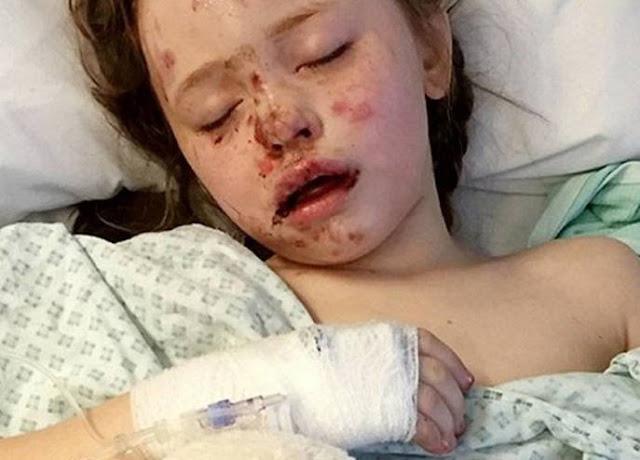 توقّعت ما سيحدث لابنتها ولم يصدقها أحد.. لكن ما حدث بعد ذلك مروّع إليكم ما حدث لهذه الطفلة المسكينة