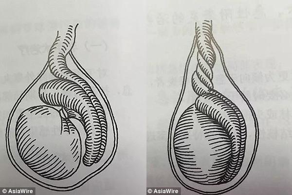 Torção Testicular (Ilustração)