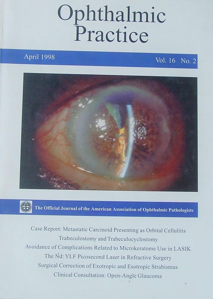 Post-cataract surgery light streaks