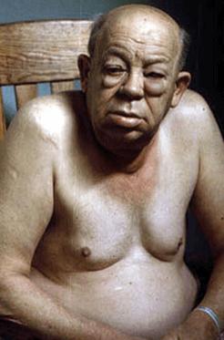 زيادة الوزن اللميكسوديما الدرقية الثيروكسين