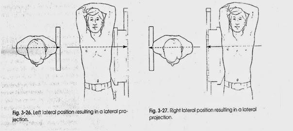 Lateral = miring menyamping ke kiri / kanan ( membentuk sudut 90o )