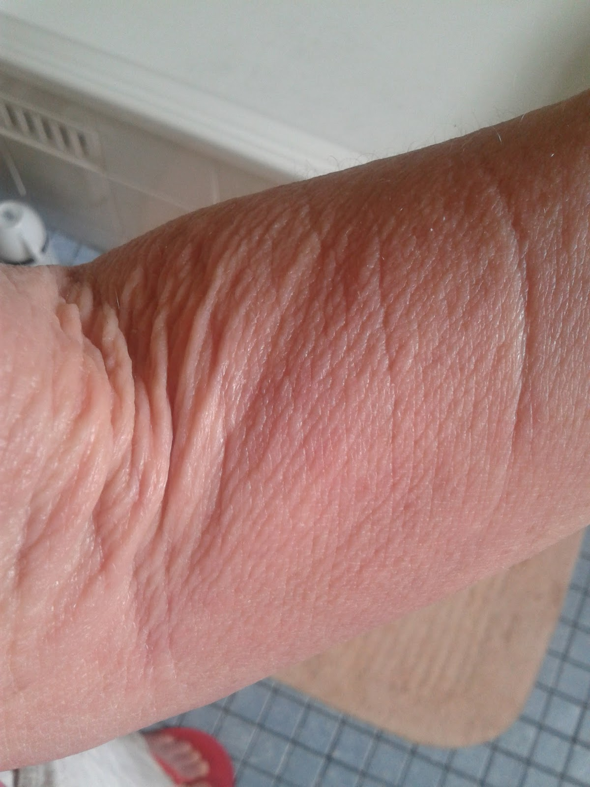 Extremely itchy - cafenews info