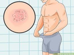 Gambar Obat Herpes Di Kelamin Yang Ampuh