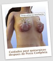 Cuidados  post quirurgicos inmediatos despues de un levantamiento de busto