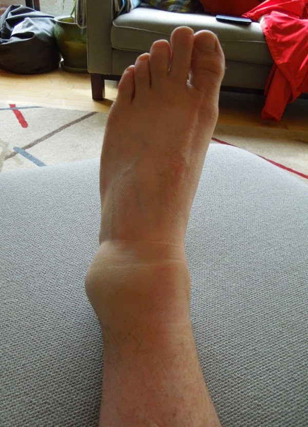 Twisted ankle running injury