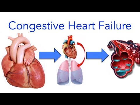evaluating the congestive heart failure nursing plan nursing essay Nursing management heart failure: educating yo heart failure: educating your patient can help prevent readmission  evidence-based care for congestive heart .