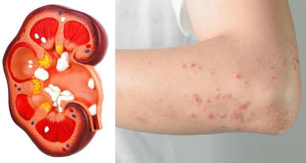 semnele care arata ca rinichii sunt in pericol