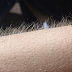 If You Get Goosebumps While Listening Music You May Have Unique Brain