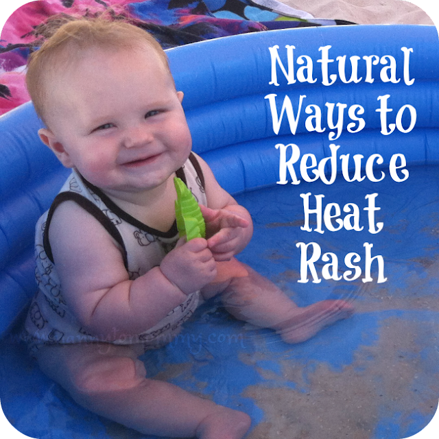 Natural Ways to Reduce Heat Rash