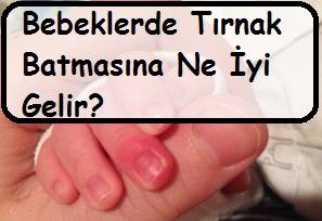 Bebeklerde Tırnak Batmasına Ne İyi Gelir