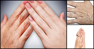 10 Natural Home Remedy For Wrinkles On Hands