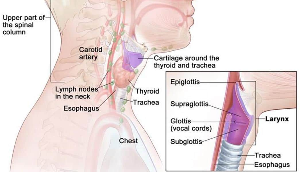 What is Laryngeal Cancer