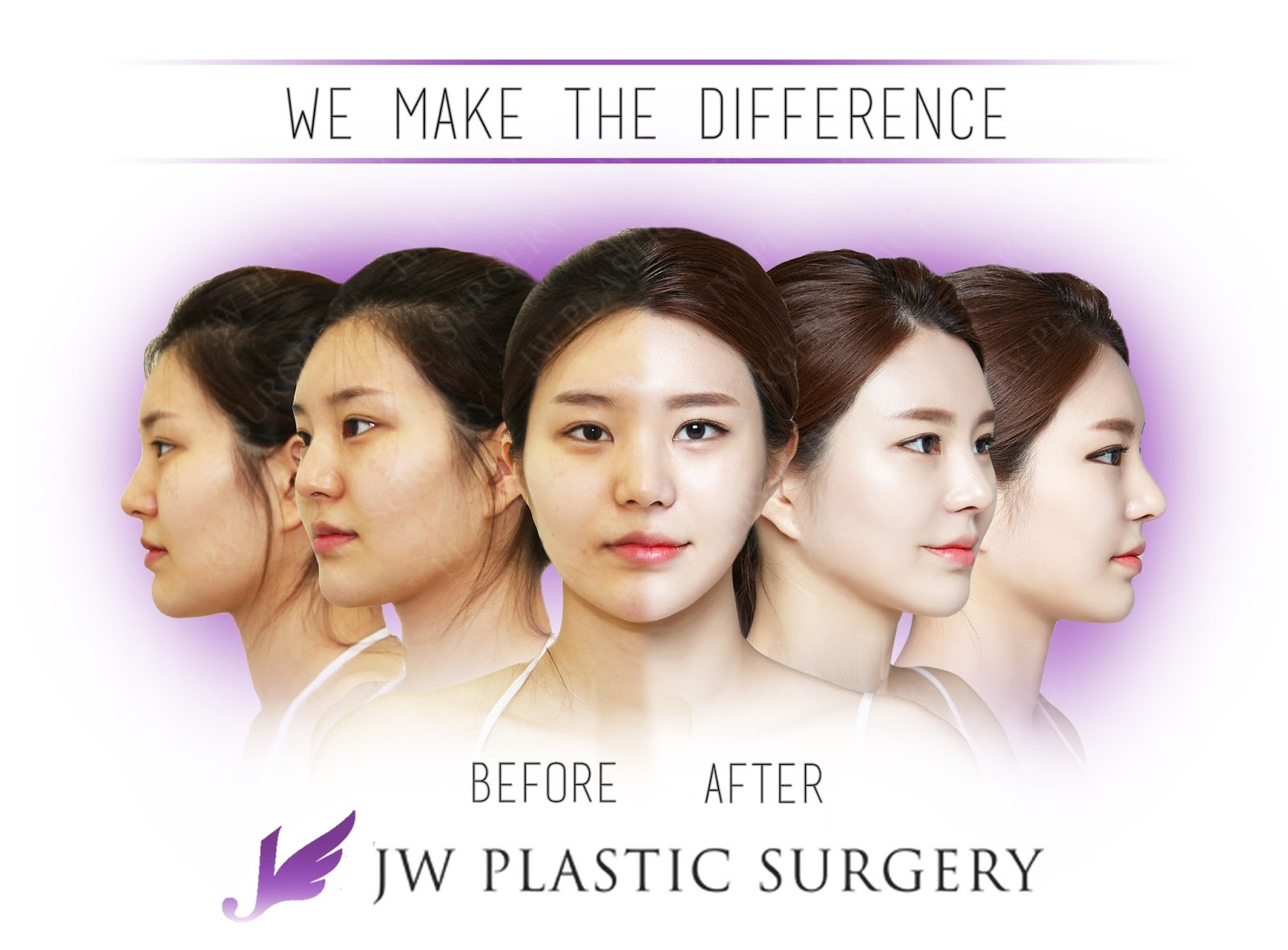 jw plastic surgery center korea  patient who had rhinoplasty by dr man koon suh and faical bone